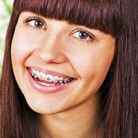 Самолигирующие брекеты — уменьшаем срок лечения на 25%