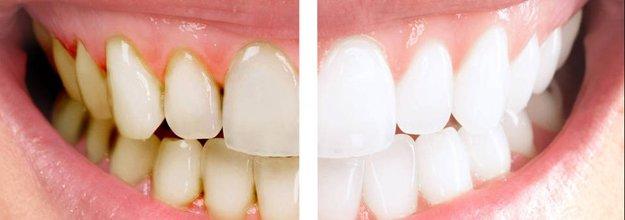 отбеливание зубов аир флоу
