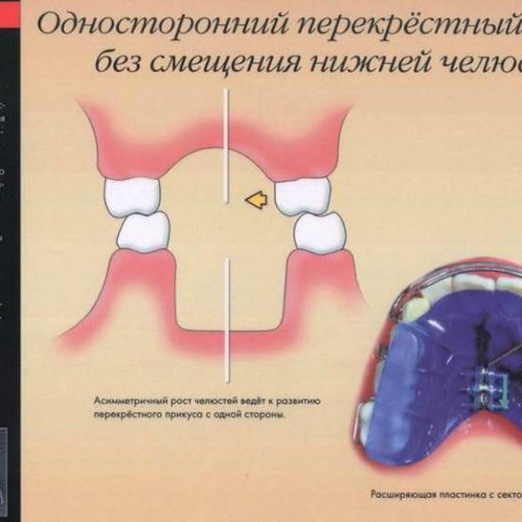 Постановка зубов при перекрестном
