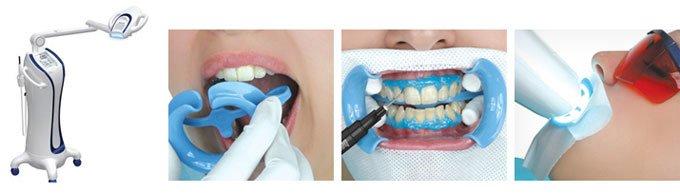 отбеливание зубов бьенд