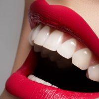 Создания идеальной улыбки с помощью виниров или люминиров