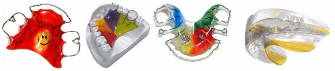 исправление прикуса пластинами