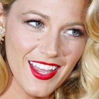11 преимуществ голливудских люминиров