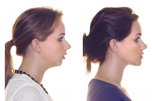 меняется ли лицо после ношения брекетов