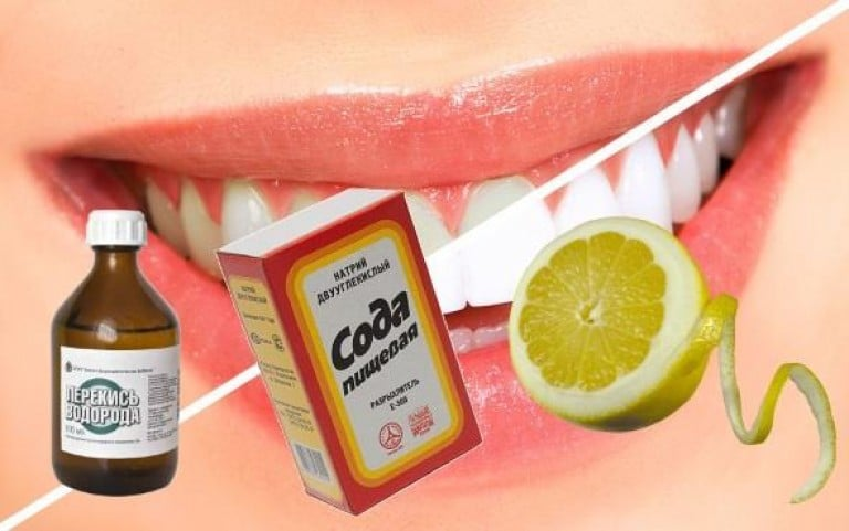 Как сделать зубы белыми в домашнем условий