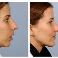 Изменение лица после ношения брекетов