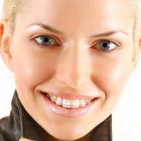 7 причин, по которым стоит выбирать невидимые брекеты