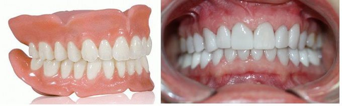 прикус зубов красивый