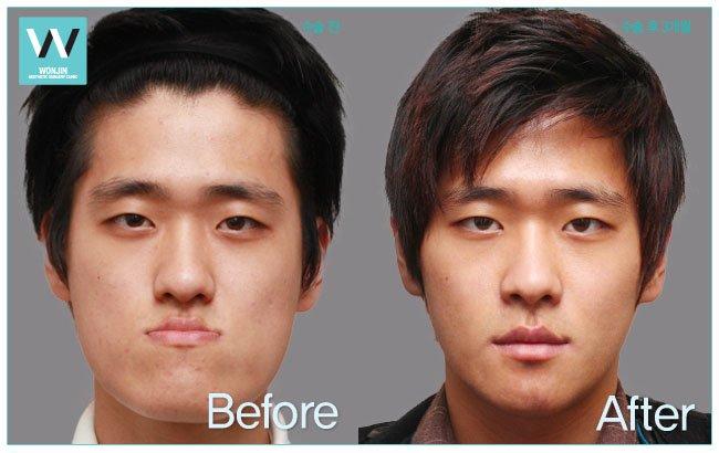 ортодонтическое исправление прикуса
