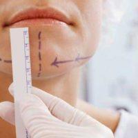 12 показаний для хирургического исправления прикуса
