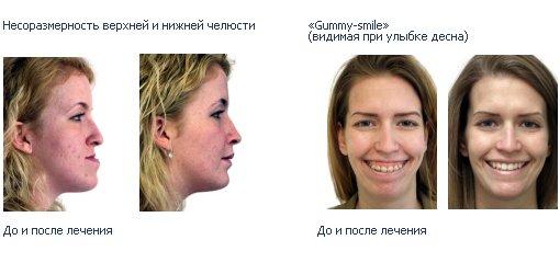 ортодонт исправление прикуса у взрослых