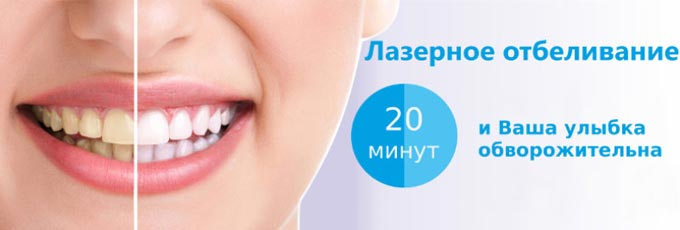 сколько длится лазерное отбеливание зубов