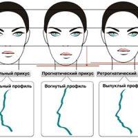 Виды различных патологий прикуса и их профилактика