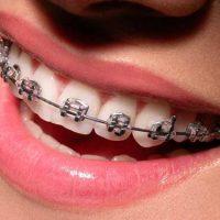 Частичные брекеты — выгодный способ купить ослепительную улыбку