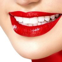 Об этом следует знать перед лазерным отбеливанием зубов