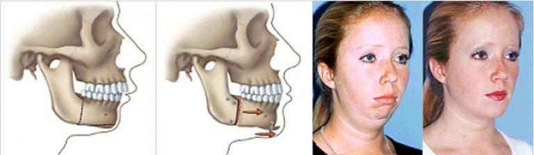 Где и как сделать операцию на челюсть 833