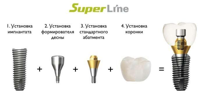 dentium импланты