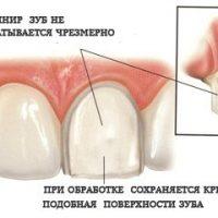 Препарирование зубов — подготовка к установке виниров