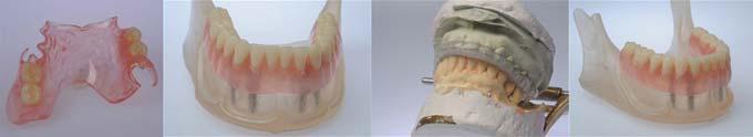 изготовление протезов