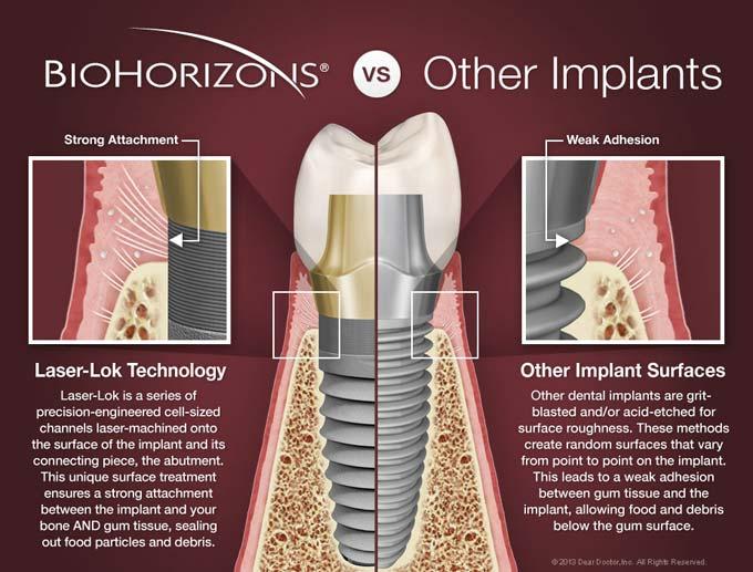biohorizons импланты