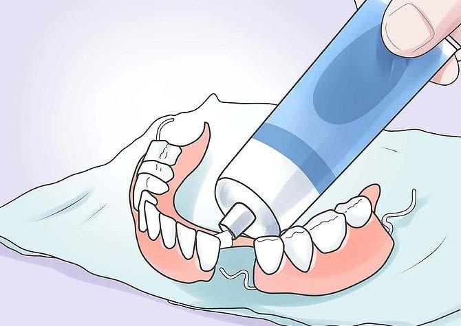 фиксация зубных протезов при полном отсутствии зубов