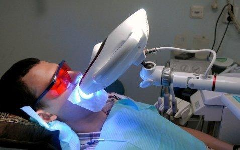 отбеливание зубов led лампой
