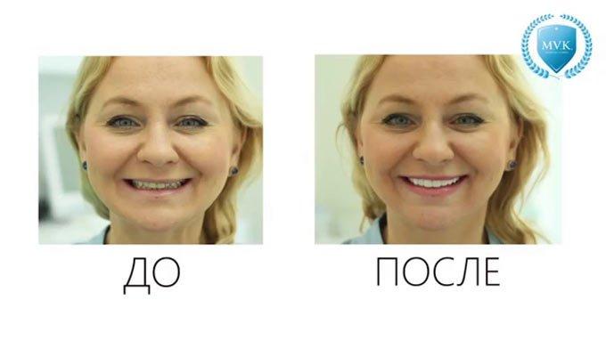 выравнивание зубов люминирами