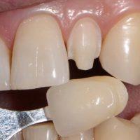 Пять эффективных способов обточки зубов под виниры