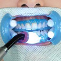 Отбеливание зубов LED лампой (холодный свет)