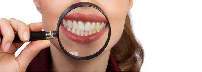 тест о зубах