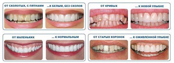 обработка зубов под виниры