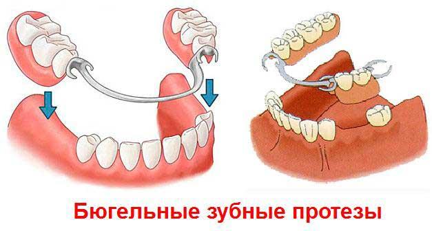 бюгельный протез на имплантах