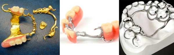 уход за бюгельными зубными протезами