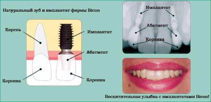 импланты bicon