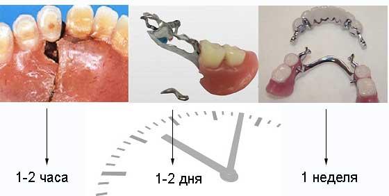 Закрепить зубную коронку в домашних условиях