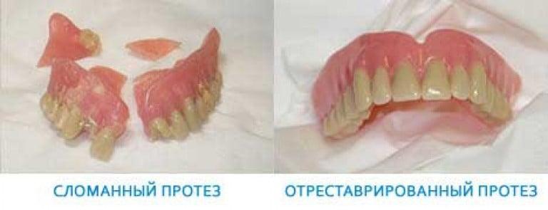 Как склеить зубные протезы в домашних условиях