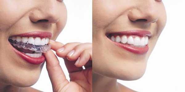 силиконовые брекеты для выравнивания зубов
