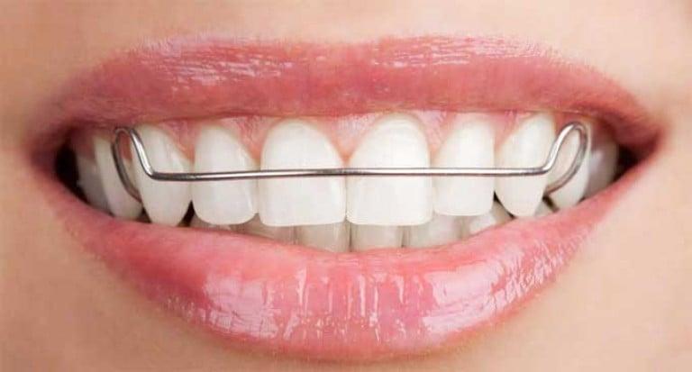 Как можно выпрямить зубы самому