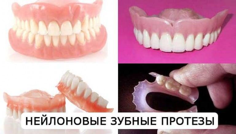 Протезы для зубов нейлоновые протезы отзывы