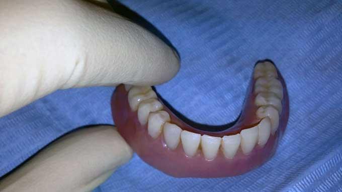 аллергия на зубные протезы симптомы
