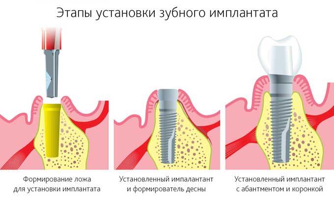 этапы установки зубных имплантов