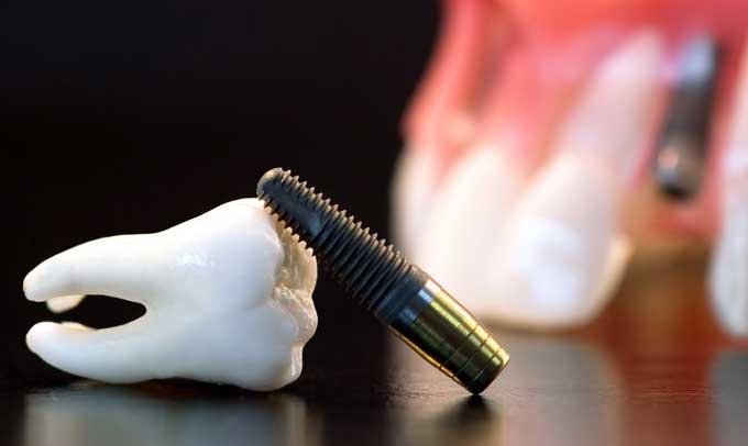 циркониевые импланты