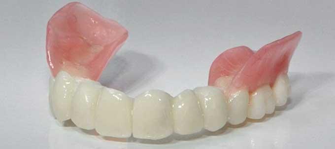 съемные зубные протезы как выбрать