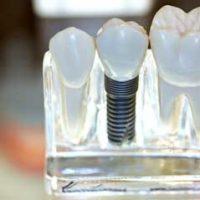 9 преимуществ использования зубных протезов из металлокерамики