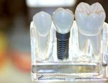 зубные протезы из металлокерамики