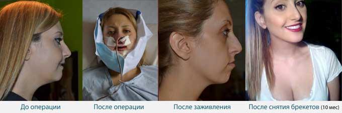 ортогнатическая операция пропорции лица