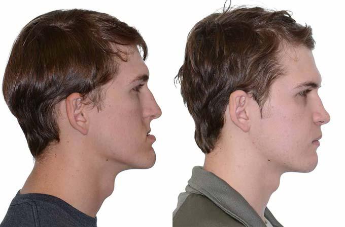 пропорции лица после ортогнатической операции