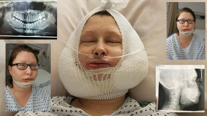 реабилитация после ортогнатической операции