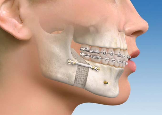 результат ортогнатической операции