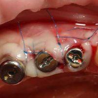 Отторжение импланта симптомы и причины